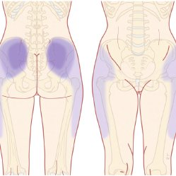 Sciatica: Referred or Radicular Pain?